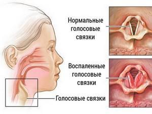 ларингит ангина симптомы и лечение