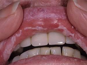 лечение молочница во рту у взрослых симптомы лечение