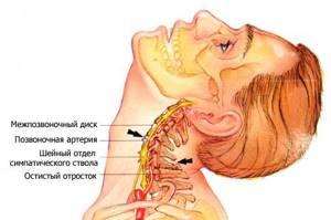 лечение шейного остеохондроза симптомы