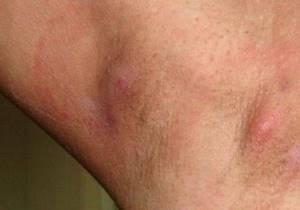 лимфоузлы подмышками воспаление симптомы лечение