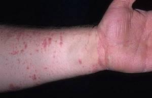 лишай гипертрофический красный плоский описание симптомы и лечение