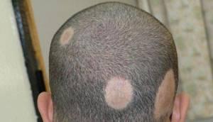лишай на голове симптомы лечение