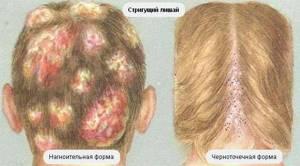 лишай на голове у взрослого симптомы и лечение