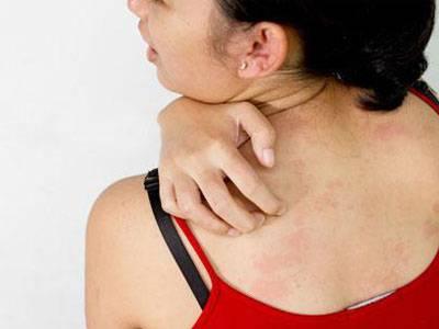 лишай причины симптомы лечение