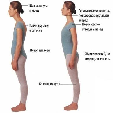 лордоз шейного отдела симптомы лечение
