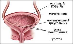лучевой цистит лечение и симптомы