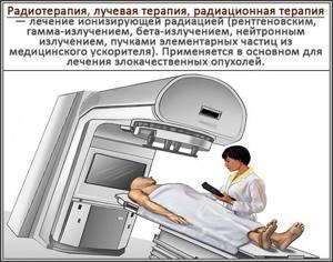 лучевой цистит симптомы лечение