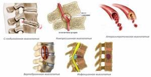 миелопатия шейного отдела симптомы лечение