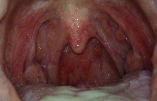 молочница горла симптомы и лечение