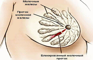 молочница молочных желез при грудном вскармливании симптомы и лечение