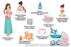 молочница на сосках симптомы лечение