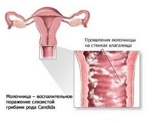 молочница у девушек причины симптомы лечение