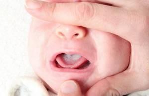 молочница у младенцев во рту лечение симптомы