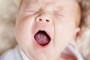 молочница у новорожденного симптомы лечение