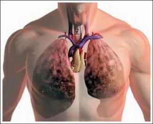 молочница внутренних органов симптомы лечение