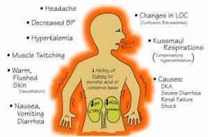молочнокислый ацидоз лечение симптомы