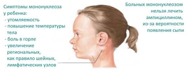 моноцитарная ангина симптомы и лечение