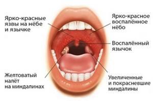 некротическая ангина симптомы и лечение у взрослых