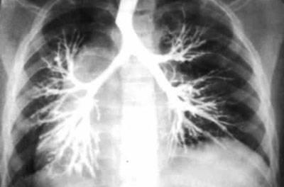облитерирующий бронхиолит у взрослых симптомы и лечение