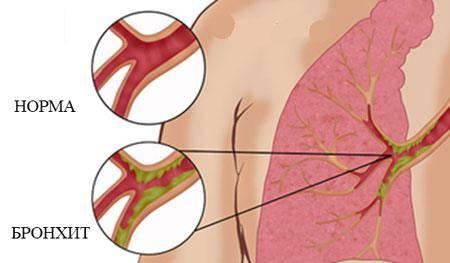 обострение бронхита симптомы лечение