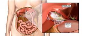 обострение хр холецистита симптомы лечение