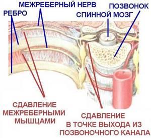 обострение шейно грудного остеохондроза симптомы лечение