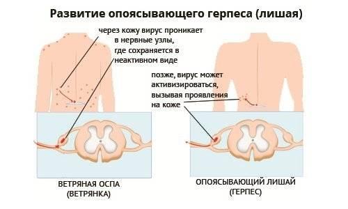 опоясывающий лишай симптомы и методы лечения