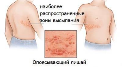 опоясывающий лишай симптомы лечение последствия