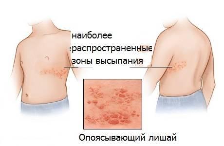 опоясывающий лишай симптомы лечение рецидив
