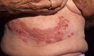 опоясывающий лишай симптомы лечение у пожилых