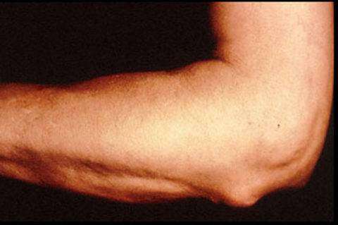 осложнения после ангины на суставы симптомы и лечение у взрослого