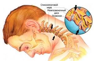 остеохондроз шейного отдела симптомы лечение таблетки