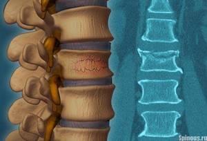 остеопороз симптомы и лечение шейного отдела
