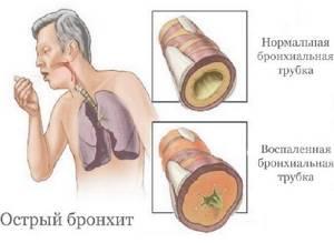острый бронхит симптомы у взрослых лечение