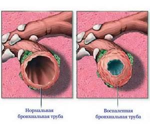 острый бронхит у грудничка симптомы и лечение