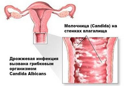 от чего появляется молочница у девушек симптомы и лечение