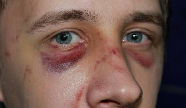 перелом носа симптомы лечение последствия травмы