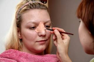 перелом носа симптомы лечение последствия травмы носа
