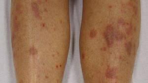 плоский лишай у человека симптомы лечение
