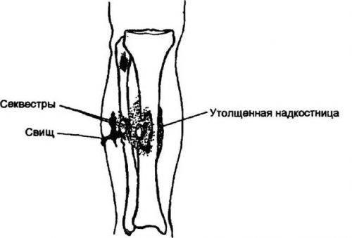 посттравматический остеомиелит симптомы и лечение