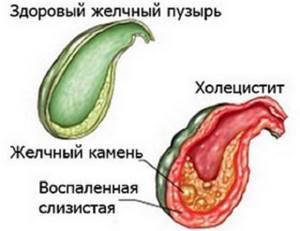 приступ калькулезного холецистита симптомы лечение