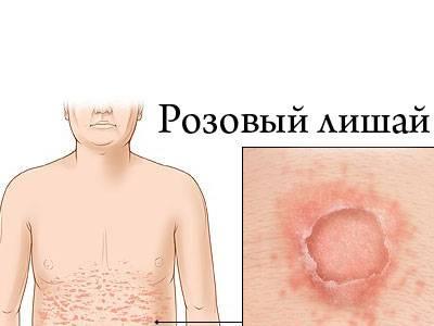розовый лишай у человека симптомы лечение народными средствами