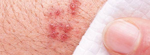 розовый лишай у человека симптомы лечение заразен ли