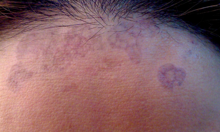 рыжий лишай у человека симптомы лечение