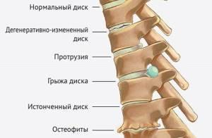 шейно грудной остеохондроз симптомы и лечение дома