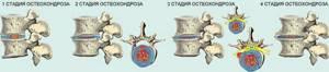 шейно поясничный остеохондроз симптомы и лечение