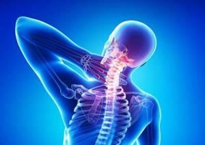 шейный хандроз симптомы лечение