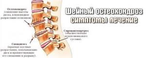 шейный хондроз симптомы лечение уколы