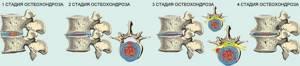 шейный остеохондроз 1 степени симптомы лечение