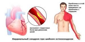 шейный остеохондроз причины симптомы и лечение